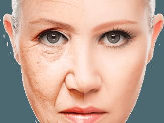 Le rughe del viso