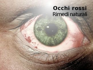 occhi rossi_rimedi