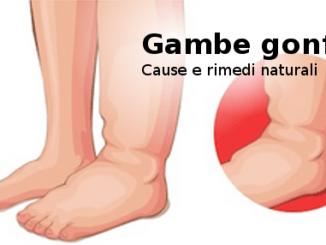 gambe_gonfie_cause_rimedi